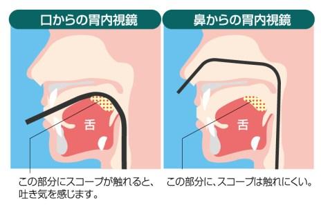 経鼻内視鏡